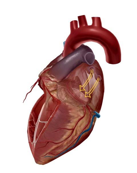 左心房と左心室のイラスト