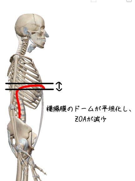 肋骨外旋位でのZOAの説明