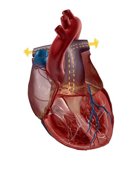 肺動脈のイラスト