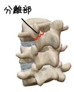 分離症の解剖イラスト