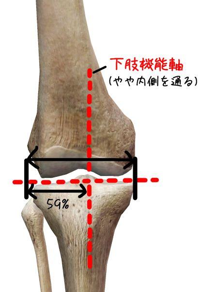 下肢機能軸が内側を通るイラスト