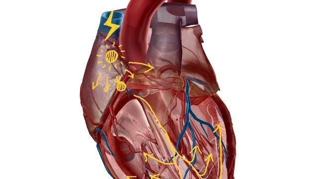 心臓:興奮伝導