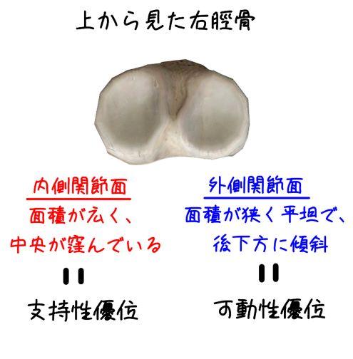 脛骨の形状のイラスト