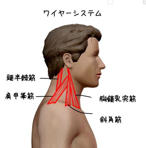頚椎安定化のワイヤーシステムのイラスト