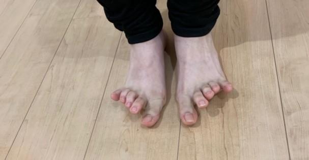 第2~4趾の伸展エクササイズ