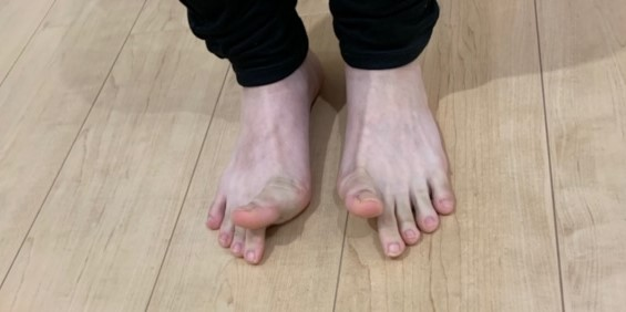 母趾の伸展エクササイズ