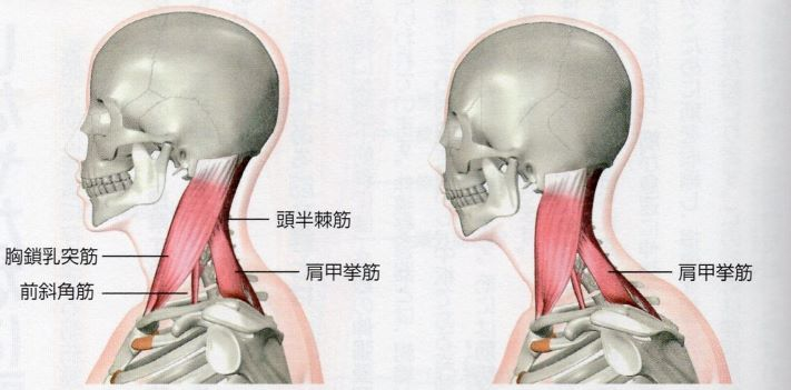 正常姿勢とフォワードヘッド姿勢の筋走行の違いのイラスト