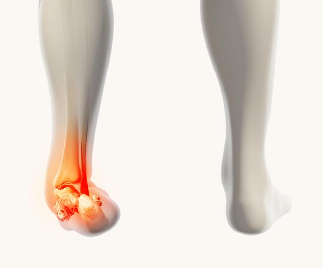 足関節内反捻挫のイラスト