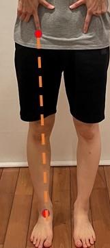 下肢機能軸の評価写真