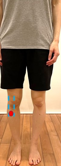 下腿外旋の評価写真