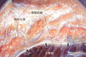 脂肪小葉と線維組織の説明